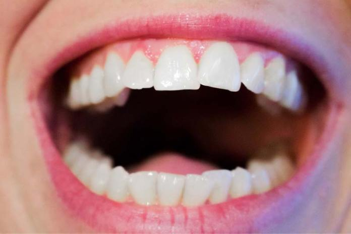 The Impact of Hormonal Changes on Women's Oral Health, hormones and mouth ulcers, hormones and tooth pain, birth control and periodontal disease, hormones and teeth sensitivity, canker sores and birth control pills, estrogen canker sores, gum inflammation and pms, menstruation gingivitis,