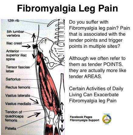 Fibromyalgia leg pain
