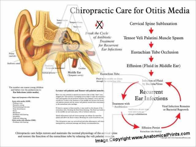 chiropractic care for Otitis media