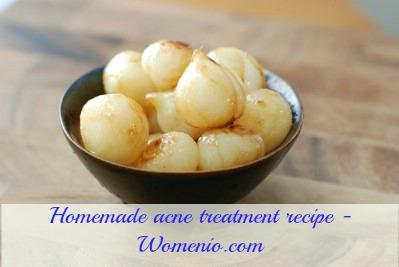 Homemade acne treatment mask recipe