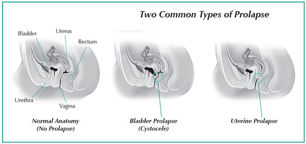 Pelvic organ prolapse womens international pharmacy there are different types of prolapse see figures and all can occur in varying degrees some women experience no symptoms while the symptoms for others ccuart Image collections