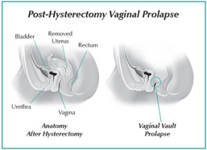 Diagram of Post-hysterectomy vaginal prolapse