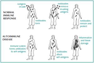 Comparison of normal immune response with autoimmune disease response
