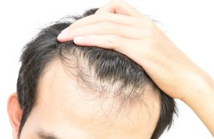premature balding in men