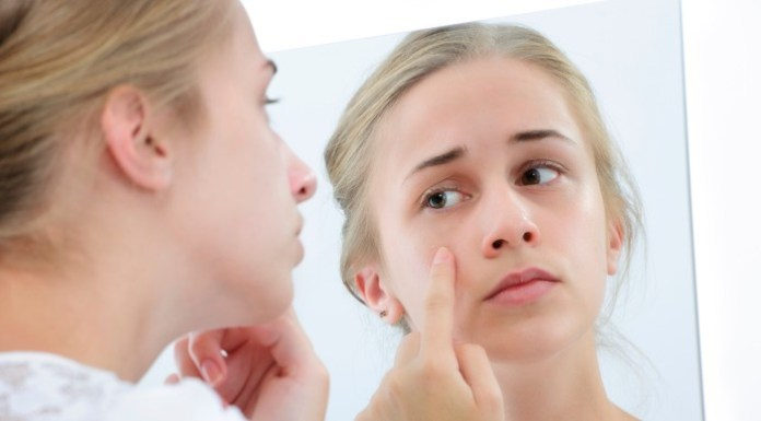 Some Acne Products Can Trigger Severe Allergic Reactions