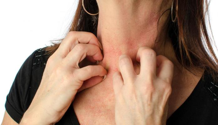 Lady suffering from skin rashes