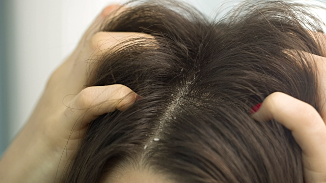 How to treat Dandruff?