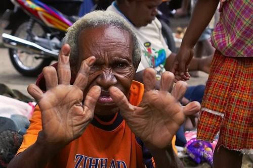 Finger Cutting of Dani Tribe