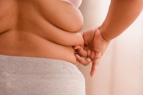 Is Obesity physical deformities