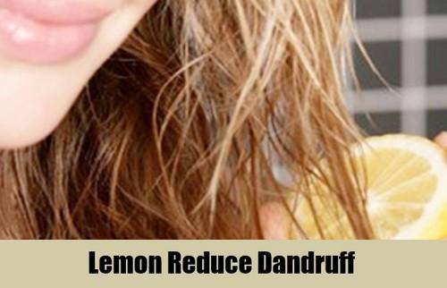 Lemon Reduce Dandruff
