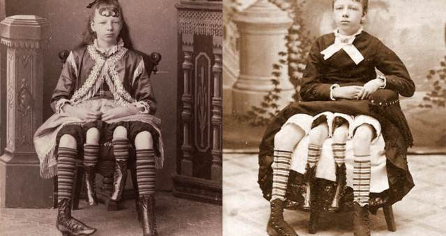 Myrtle Corbin People with Extra Body Parts