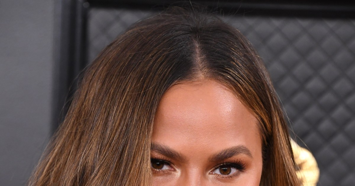 Chrissy Teigen's new face-tweak confession, more celeb plastic surgery before-and-after pics.jpg