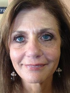GM-after-Botox-and-Juvederm-Photo-No-Comments