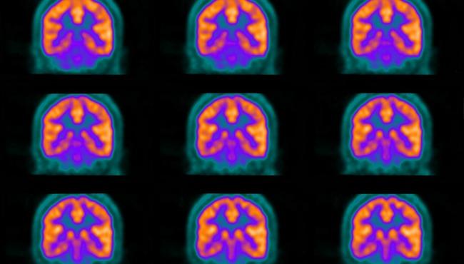 Generic brain scans_94026