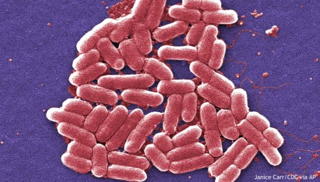 e.coli generic AP 010418_455773