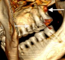 Arrow pointing right: deep carious lesions. Arrow pointing left: severe bone loss around the molars.