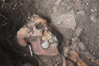 The head and shoulders of a human skeleton buried with stones in his mouth.