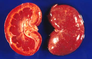 Kidney of a dog that died of leptospirosis. Multifocal interstitial ...