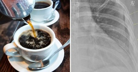 30yo Woman Who Drinks Over 10 Cups of Coffee Daily Finds Out Her Bones Are Like A 60yo - WORLD OF BUZZ 1