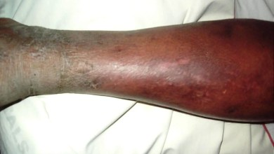 cellulitis risk factors