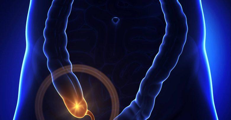 How to prevent appendicitis