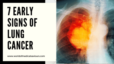 Photo of Early signs of lung cancer