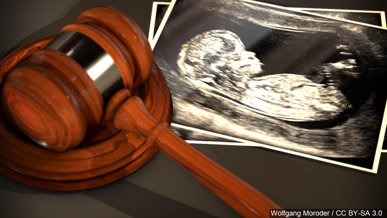 Abortion Generic_1553881059944.jpg.jpg