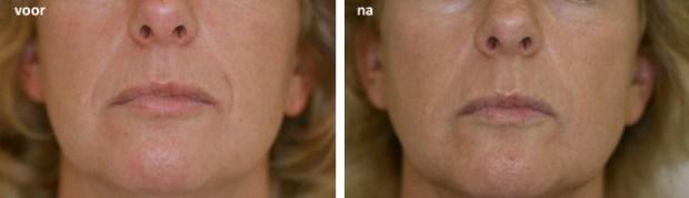 Hyaluronzuur rimpelbehandeling bovenlip