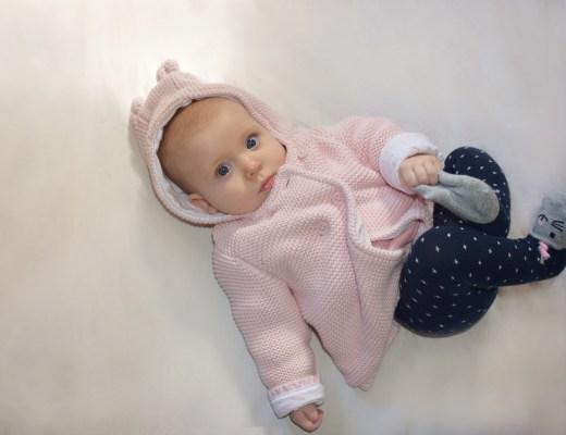 Neurofibromatosis, baby, girl, baby girl