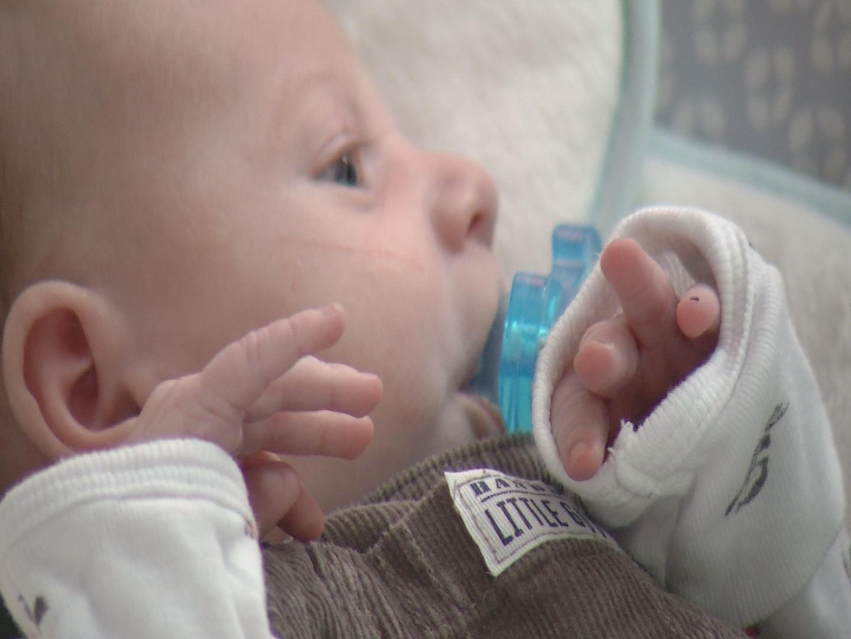 Newborn Open Heart Surgery_97937
