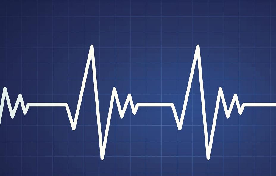 heart monitor_1549616955753.jpg.jpg