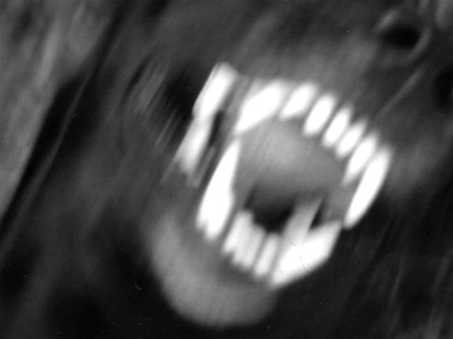 dog-attack_484883