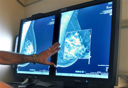 Mammography_185613