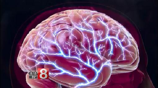 1_15_18 migraines_600595