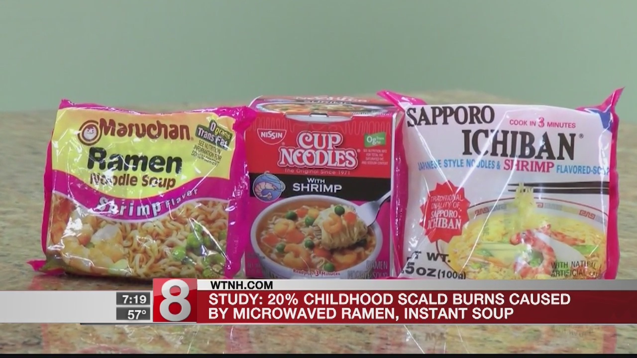 Instant soup responsible for 1 of every 5 child burns, new study says