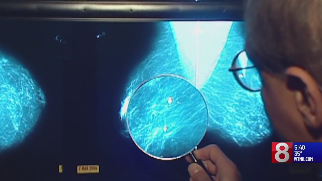 Breast cancer testing guidelines out of date, missing genetic screening, says study