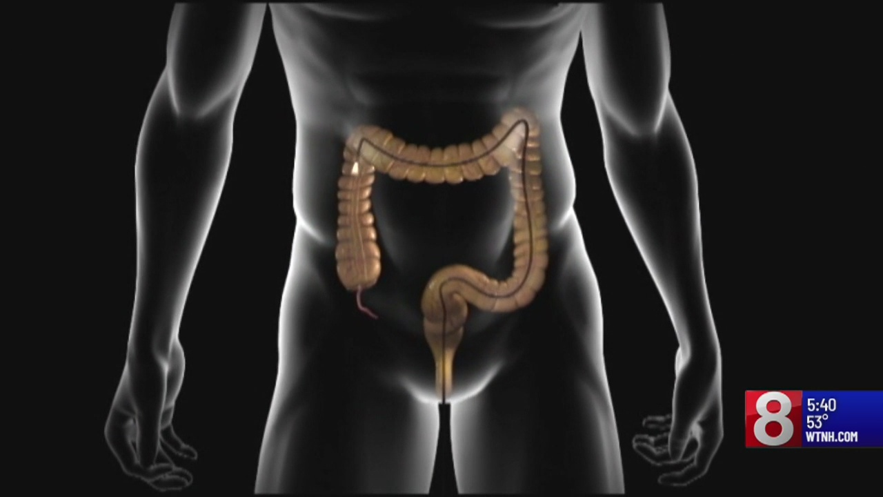 Study: Quarter of adults who should be screened for colon cancer are not being screened