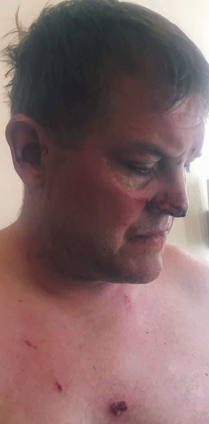 Scott Hapgood Injuries Anguilla.jpeg.jpg