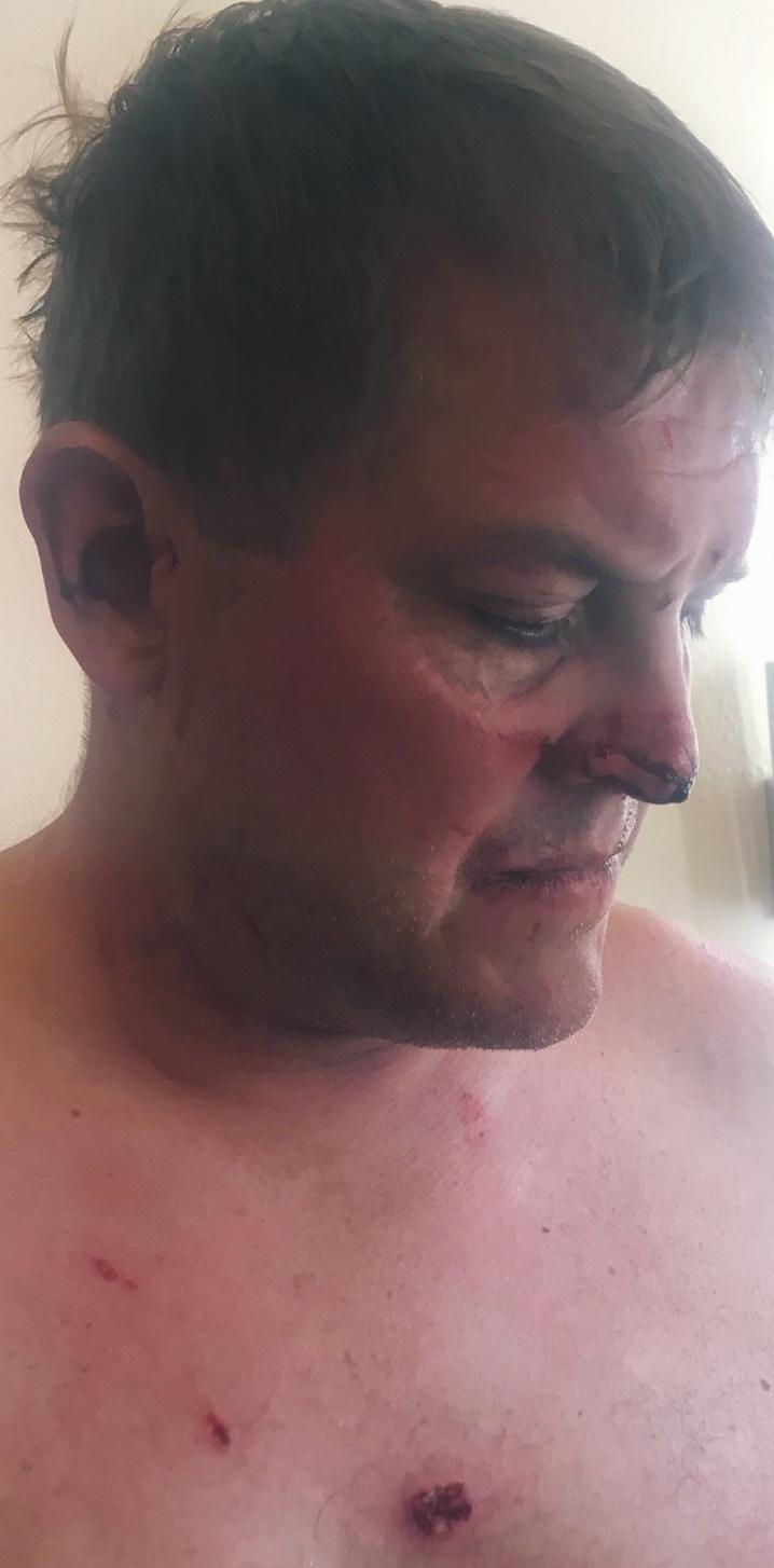 Scott Hapgood Injuries Anguilla.jpeg.jpg