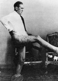 Graziani semi-ignudo, 1937