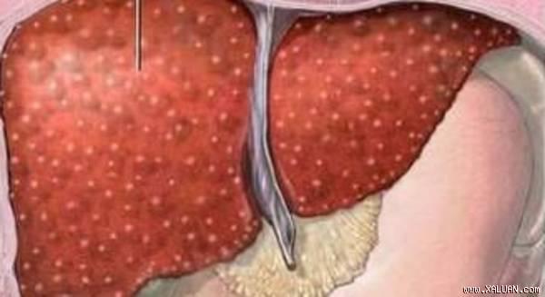 Chức năng gan suy giảm có thể gây ra chứng hôi miệng cho bạn (Ảnh minh họa)