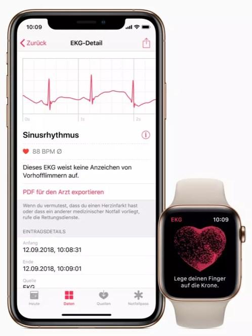 Apple iPhone watch ecg de screen 03272019