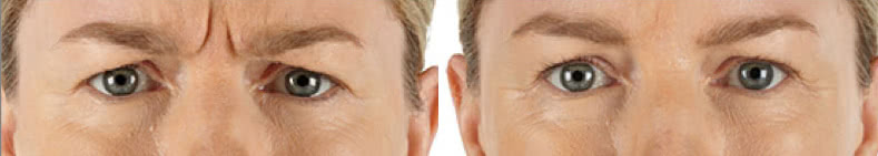 Before and after Xeomin