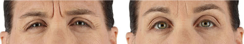 Xeomin Before After