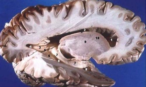 מבט תיכון על חתך במישור החיצי של המוח. בתמונה ניכרים הבדלי הצבעים בין החומר האפור בשוליים לחומר הלבן במרבית החתך