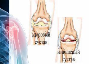 Профилактика здоровья суставов
