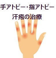 221.atopy-of-hand
