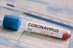 Регистрираха нови 17 случая на коронавирус, заразените вече са 293