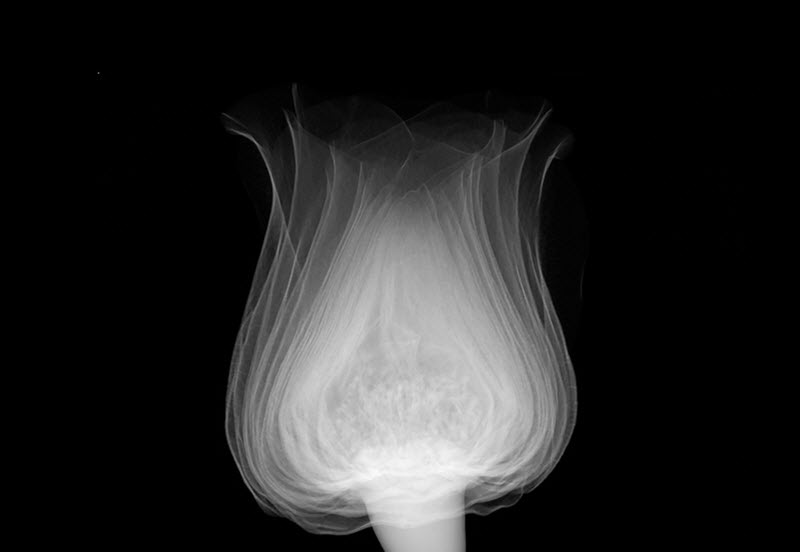 X Ray Art Learn Everything About X Ray Art