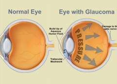 Το γλαύκωμα αποτελεί τη δεύτερη αιτία τύφλωσης